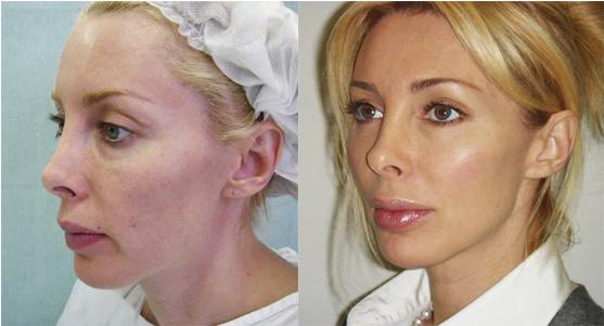 Нити Аптос: фото отзывы (до и после)