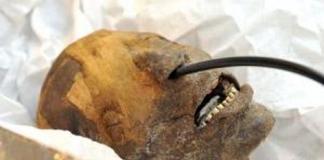Как в древности лечили зубы: ответ всех поразил
