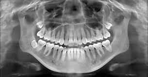 Для чего нужен рентген зуба?