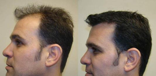 Выполнение пересадки волос