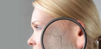 Шелушится кожа: что делать и как решить эту проблему (рецепты эффективных масок для лица)