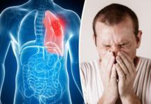 Рак легких – признаки, лечение