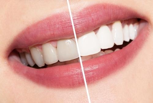 Как выполняется процедура отбеливания зубов?