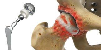 Процесс замены тазобедренного сустава
