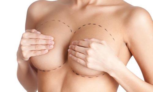 В чем смысл маммопластики?