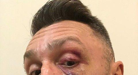 Сергея Шнурова избил подписчик его Instagram
