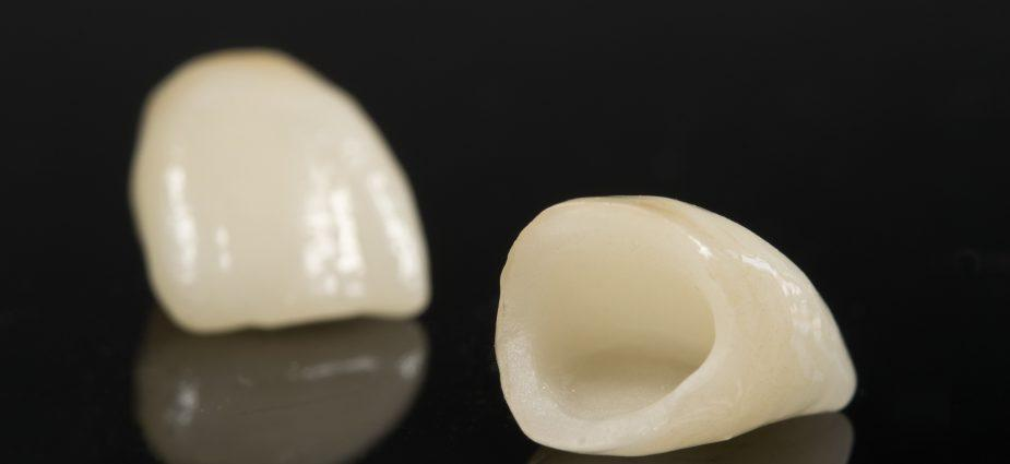 Реставрация зуба керамикой