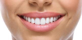 Как выполняется процедура имплантации зубов?