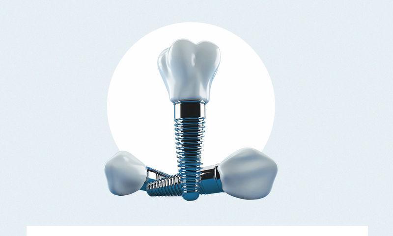 8 вопросов о зубных имплантатах