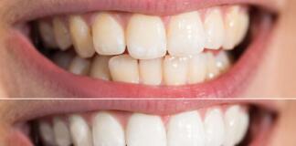 Виды отбеливания зубов в стоматологии в Москве