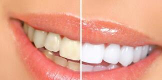 Люминиры на зубы: за и против